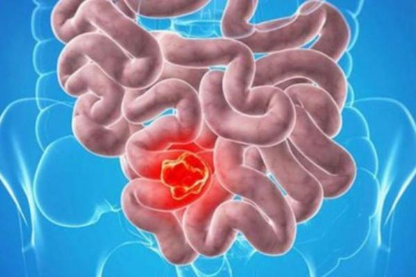 سرطان روده بزرگ قابل پیشگیری و درمان است